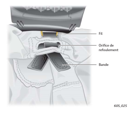 Orice-de-refoulement-supplementaire-ferme-Airbag-Audi.png