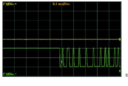 Representation-sur-loscilloscope--signal-CAN-low-en-cas-de-court-circuit-du-signal-CAN-high-a-la-mas.png